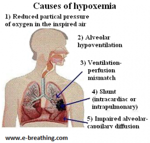causes of hypoxemia