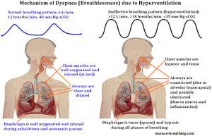 labored-breathing-breathlessness2
